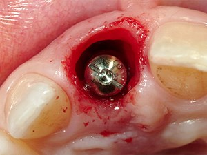 Extraction Site Micro-gap and Treatment Options in Implant Therapy