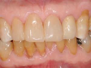 Smile Design with Anterior Composite Bonding
