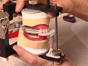 Complete Dentures - Success by Design - Part 2