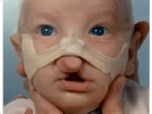 Nicholas D.-Bilateral Cleft Lip & Palate