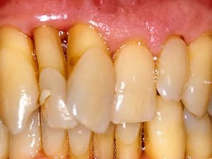 Treatment of Refractory Periodontal Disease
