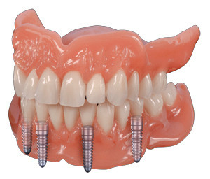 Denture Teeth Sizes http://www.dentalxp.com/heraeus